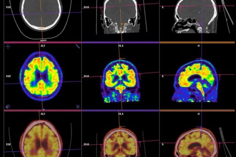 Hersenscans zeggen iets, maar het is niet altijd duidelijjk wat (foto:flickr/153257761@N07)