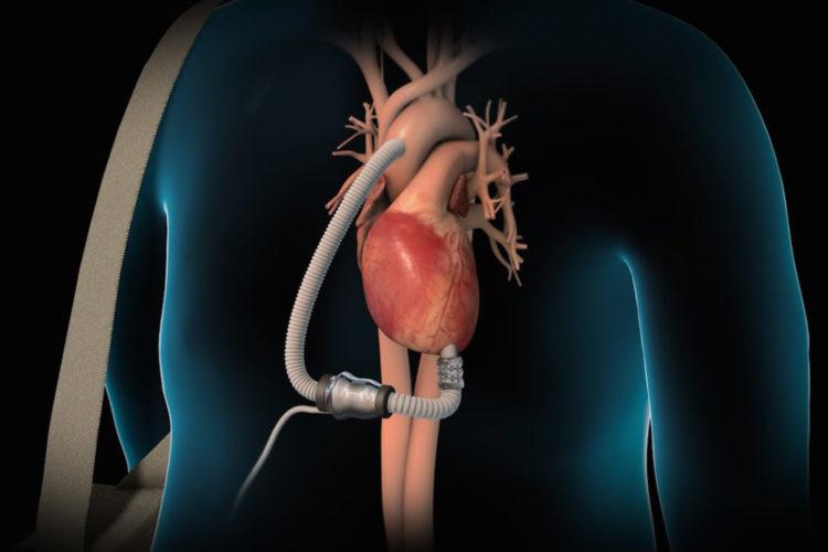 Left ventricle assist device - hoe noem je het als je die uitzet? (foto:youtube)